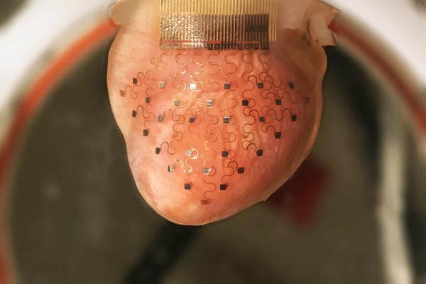 3D yazıcıdan çıkartılan kalp zarı hayat kurtacak