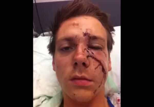 Yüzündeki yara izinin iyileşme sürecini gösteren selfie video çekti