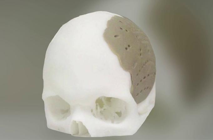 İnsan kafa tasları da 3D yazıcı ile üretilebilecek