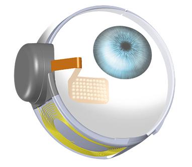 Türkiye'nin ilk biyonik göz ameliyatını Dünyagöz gerçekleştirdi