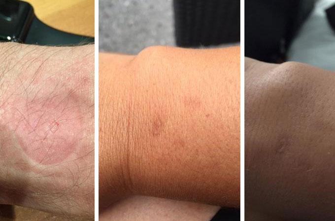 Bazı Apple Watch kullanıcıları isilikten şikayetçi