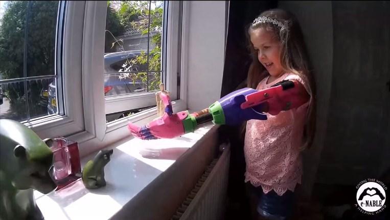 Isabella, 3D yazıcıdan çıkartılan koluna kavuştu